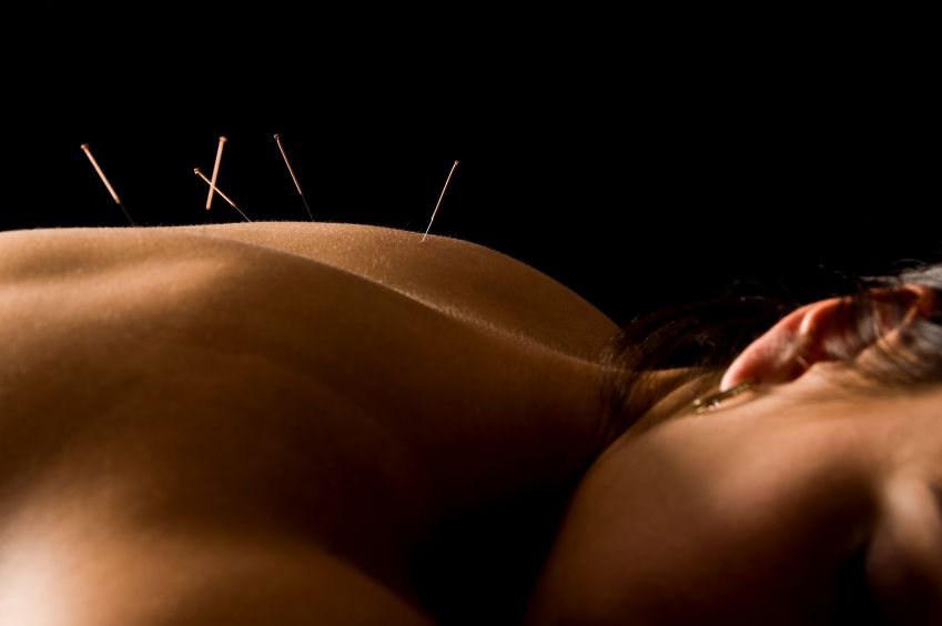acupuncture - holistic treatment for anxiety